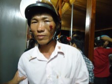 Con Cuong Catholic beaten by thugs and police (Jul 1, 2012)